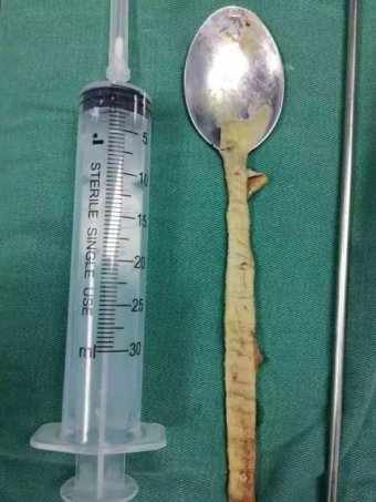 A grimy spoon covered in a film of mucous placed next to a syringe for scale. The spoon is roughly 20cm long. |340x453